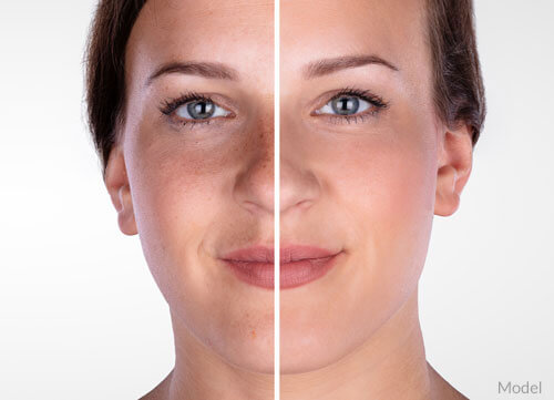 Before After - Microdermabrasion